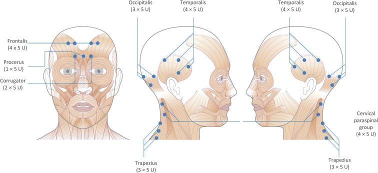 Botox tegen migraine; dit is mijn ervaring.