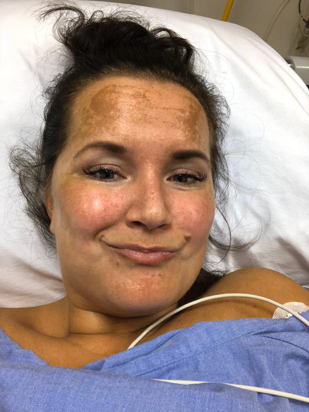 avnrt ablatie ervaringen Mariska Hartoperatie